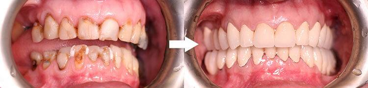 GADZIŃSCY :: Stomatolog Poznań, dentysta poznan :: Implanty, Endodoncja, Protetyka, Stomatologia estetyczna Poznań Grunwald